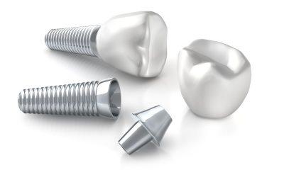 Implanty zebowe